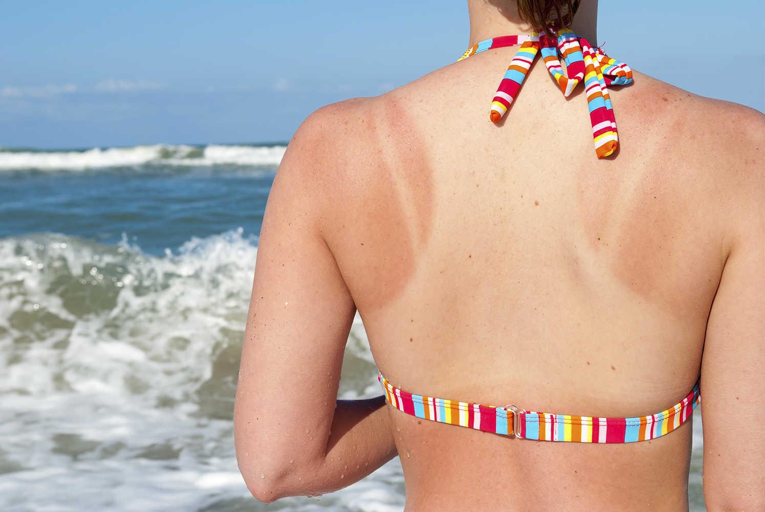 A woman having sunburn in summer