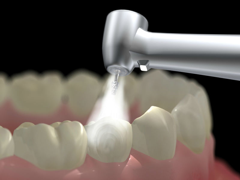 Researchers at IIT-M develop first ever Pain-free dental filling
