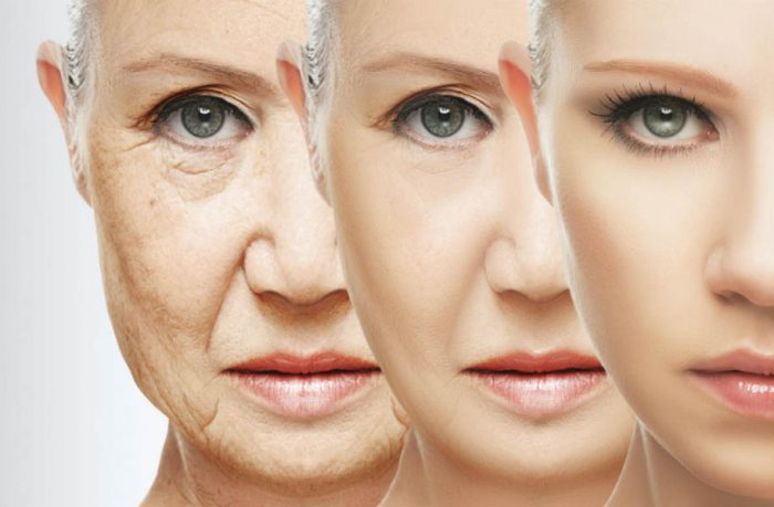 'Freckle' Gene MC1R Linked To Aging And Youthful Looks
