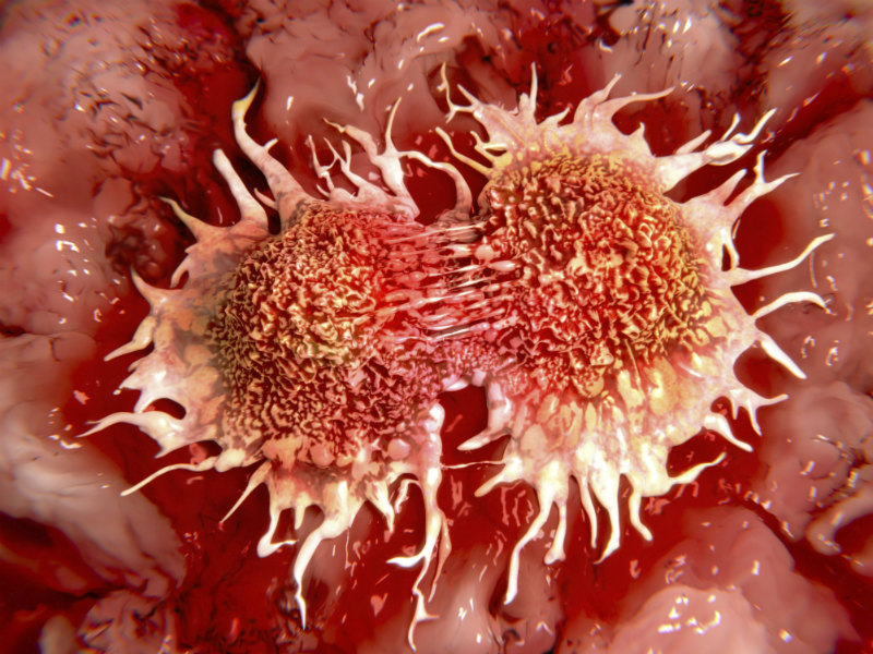 cancer cells kills in two hours by a new method