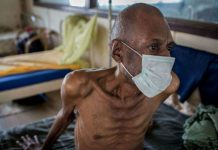 WHO rates India with the highest TB affected patients around the globe