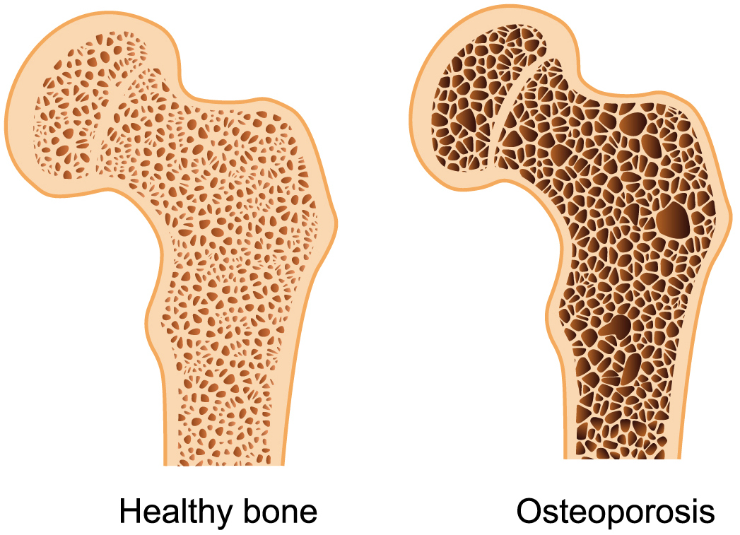 Like Women, Men are too prone to Osteoporosis: New testimony says