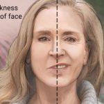 Bell's palsy facial paralysis