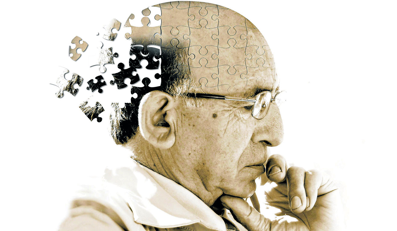 alzetimers diease Alzheimer disease (ad) is the most common causes of neurodegenerative disorder in the elderly individuals clinically, patients initially present with short-term.