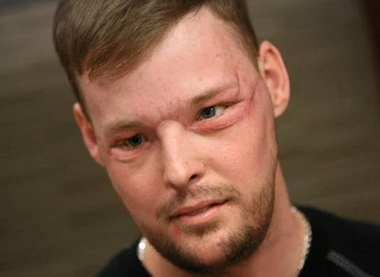 Medical Wonder: 50-Hours-Long Face Transplant Surgery Gave the US-Man a New Look