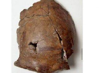 6000 year onld skull part