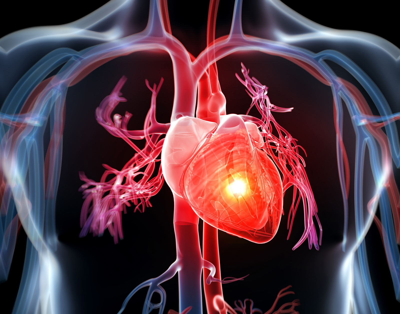 You are more prone to heart disease if your family members are heart patients